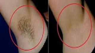 ازالة الشعر نهائيا بدون ألم من كامل الجسم و الوجه بمكون واحد فقط  مجرب وموجود فكل بيت