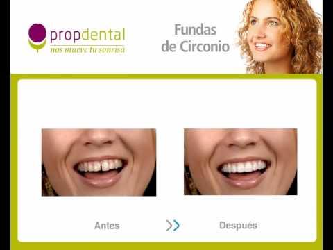 Zirconio | Protesis de circonio | Dientes 100% naturales