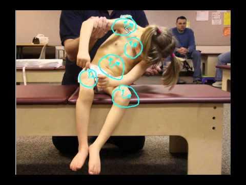 HipSubluxation01 Leonid03