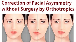 getlinkyoutube.com-Correction of Facial Asymmetry without Oral Surgery Using Orthotropics Method by Dr Mike Mew