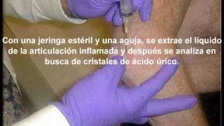 curacion acido urico urea y acido urico altos tratamiento natural de la gota