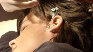 getlinkyoutube.com-vertical tragus surface