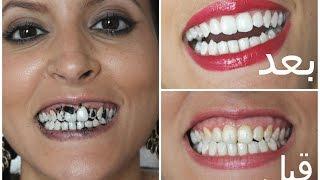 getlinkyoutube.com-5 خلطات طبيعية لتبييض الأسنان| مع ميمي