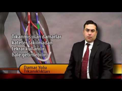 Prof.Dr.BARIŞ AKIN - FİSTÜL SORUNLARI