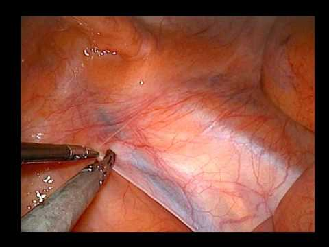 lap varicocelectomy