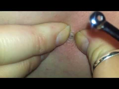 Blackhead squeezing!
