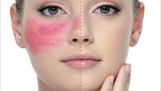 getlinkyoutube.com-8 Dermatologist Skincare Tips For Rosacea + Product Recommendations