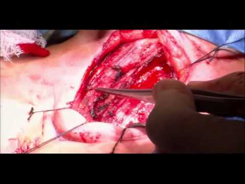 Video Panel 3   Surgical Pearls for Safe Thyroid Surgery   Central Compartment Lymph Node Dissection