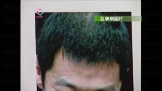 getlinkyoutube.com-20101028 頭髮稀疏的兇手: 雄性禿