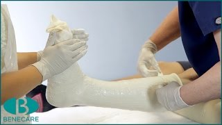 How to Apply a Below Knee Cast Using Plaster of Paris