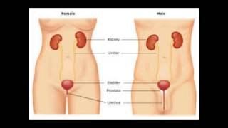 getlinkyoutube.com-how to get rid of a bladder infection |home remedies for bladder infection