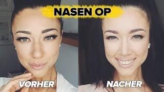 getlinkyoutube.com-☆ MEINE NASEN-Op ☆ DANACH (Vorher-Nacher-Fotos) + KOSTEN