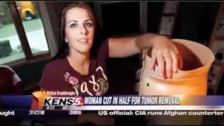 getlinkyoutube.com-Woman gets cut in half to save her life