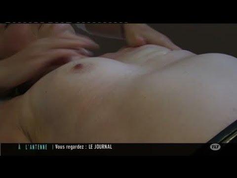 Cancer du sein : La reconstruction mammaire (Toulouse)