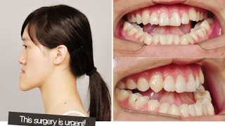 getlinkyoutube.com-[id hospital review] let me in china, Orthognathic surgery before and after