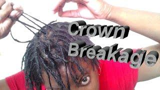 getlinkyoutube.com-POSSIBLE REASONS FOR CROWN BREAKAGE ON NATURAL HAIR