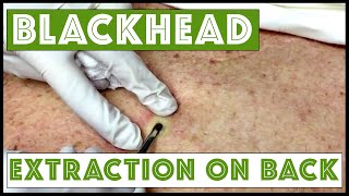 getlinkyoutube.com-Updated blackhead cyst x2 extraction on the back!  For medical education- NSFE.