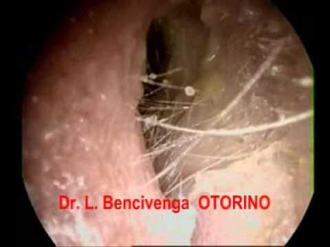 Otorino Ostia Ladispoli (Il Mal D'orecchi durante l'estate)