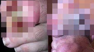 getlinkyoutube.com-【グロ注意】※閲覧注意!!巻き爪の最終形態がグロ過ぎて怖すぎ・痛すぎ