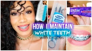 getlinkyoutube.com-How I Maintain White Teeth with Braces
