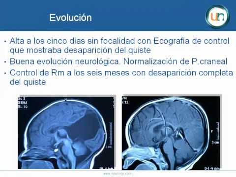 Neurorgs.net-Quiste intracerebral en lactante