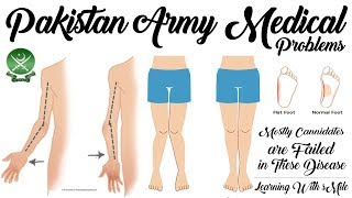 Top Medical Issues/Problems for Joining Pakistan Army of New Candidate's - Pak Army Medical Issues width=