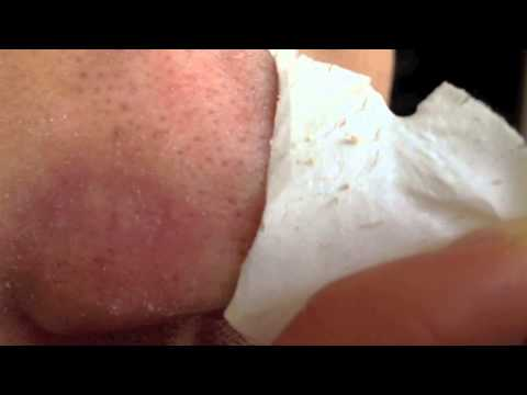 Blackhead removal w/ Biore pore strip - Part 2