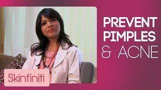 How To Prevent Acne & Pimples || Skincare || Skinfiniti With Dr.Jaishree Sharad