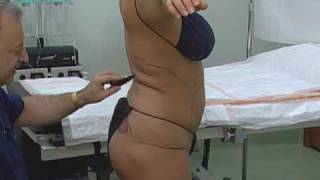 getlinkyoutube.com-Safest SmartLipo in South Florida (Fort Lauderdale Office)