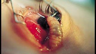 getlinkyoutube.com-【グロ閲覧注意】世界の恐ろしい寄生虫ヒューマンパラサイトbest10が怖い【最凶の閲覧注意】