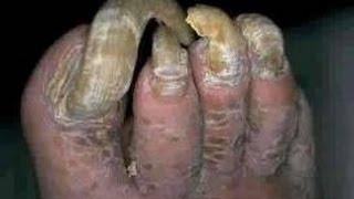 getlinkyoutube.com-Hongos en las uñas mano y pies casos crónicos - Dermatofitosis del pie - Pie de atleta