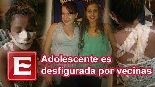 getlinkyoutube.com-Adolescente es desfigurada por ser 'bonita'
