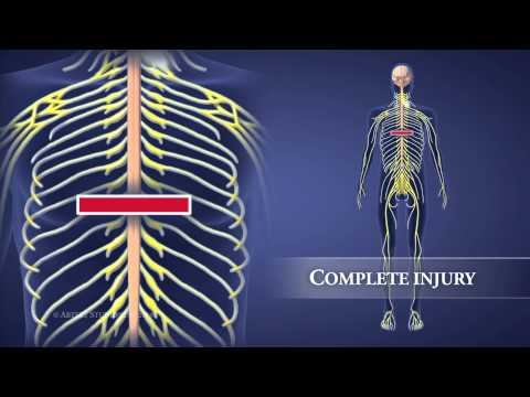 Types of Spinal Injuries