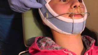 getlinkyoutube.com-Second Stage-p3 of MewVector Orthodontic Orthotropics Headgear (Head Brace) Preparation- Dr Mike Mew
