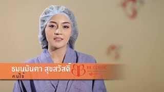 getlinkyoutube.com-Review : การเสริมหน้าอกน้องมันตา by BB Clinic