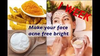 getlinkyoutube.com-With in One Week glowing skin magic ! Acne Free