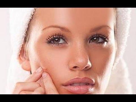 7 Tips buenismos para tener una Piel sin acne, hermosa & suave