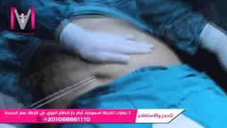 getlinkyoutube.com-شاهد كيف تتم عملية شفط الدهون بالتفصيل .. فيديو من داخل غرفة العمليات