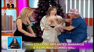 getlinkyoutube.com-Você na TV #3 - Dr. Ângelo Rebelo (Parte 1) - Cirurgias que correram mal