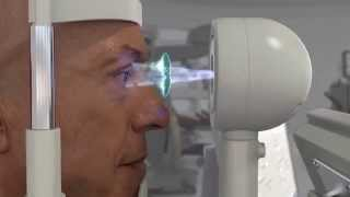 The VERION™ Image Guided System Alcon