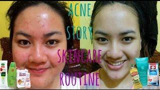 getlinkyoutube.com-MY ACNE STORY + SKINCARE ROUTINE for ACNE SKIN   Cerita Lawan Jerawat + Skincare Jerawat (Indonesia)