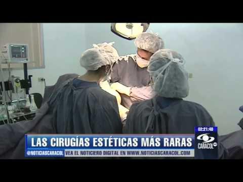 ¿Silicona en el cerebro? Un vistazo a las cirugías estéticas más extrañas - 25 de enero de 2013