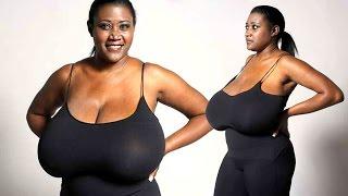 getlinkyoutube.com-Woman's Bosom Keeps Growing To 36NNN – Rare Condition