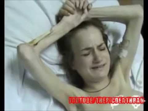 The Effects of Krokodil - Real Life Zombies