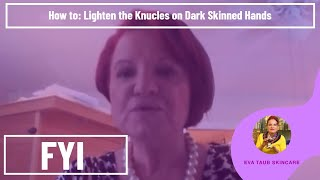 getlinkyoutube.com-How to Lighten the Knucles on Dark Skinned Hands