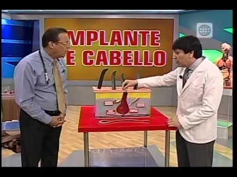 Dr. TV Perú (02-09-2014) - B2 - Tema Libre: Implante De Cabello