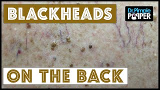 getlinkyoutube.com-Back Blackhead Extractions after Mohs Surgery