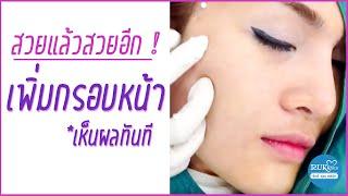 getlinkyoutube.com-ร้อยไหมกรอบหน้า,ปรับรูปหน้า,ยกร่องแก้ม,ยกมุมปาก