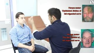 getlinkyoutube.com-Cranial Nerves examination