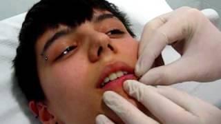 getlinkyoutube.com-Piercing labio horizontal